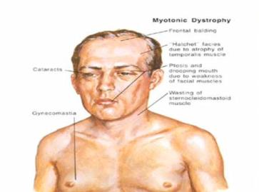 mytonic muscular dystrophy Myotonic dystrophy is more than just a muscle disease both dm1 and dm2 affect several aspects of physical and mental functioning, to varying degrees and with variable scope the following sections discuss different problems that can occur, although many people with the disease have only some of them most of these symptoms can be.